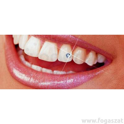 Skyce fogékszer